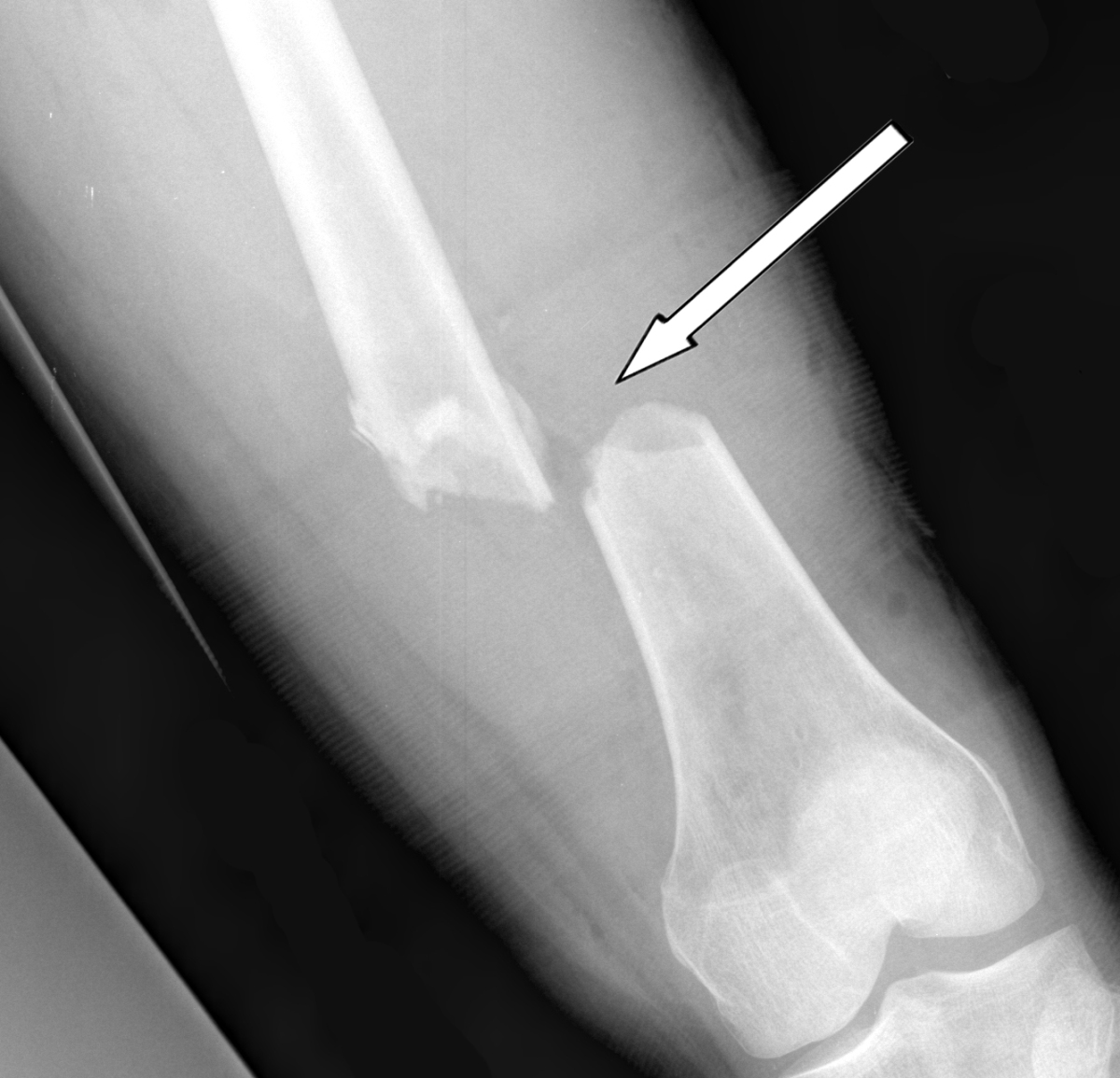"""Arrow Sign"" on Imaging Correlated with Significant Radiologic Findings"